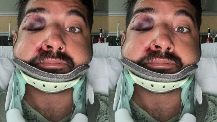 Gay man in San Diego hospitalised after savage attack in alleged hate crime