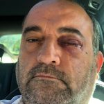 Man could lose sight after homophobic attack in Birmingham's gay village left him unconscious